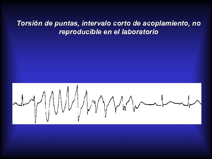Torsión de puntas, intervalo corto de acoplamiento, no reproducible en el laboratorio