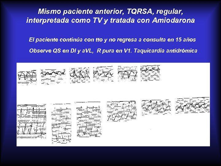 Mismo paciente anterior, TQRSA, regular, interpretada como TV y tratada con Amiodarona El paciente