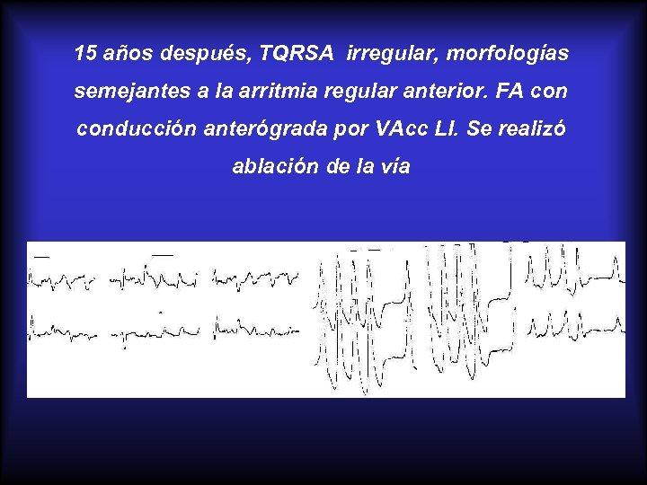 15 años después, TQRSA irregular, morfologías semejantes a la arritmia regular anterior. FA conducción