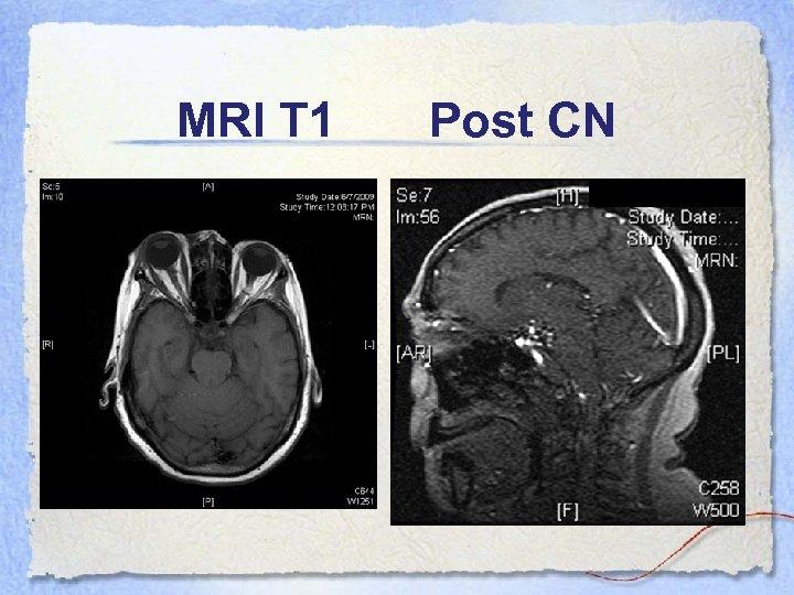 MRI T 1 Post CN