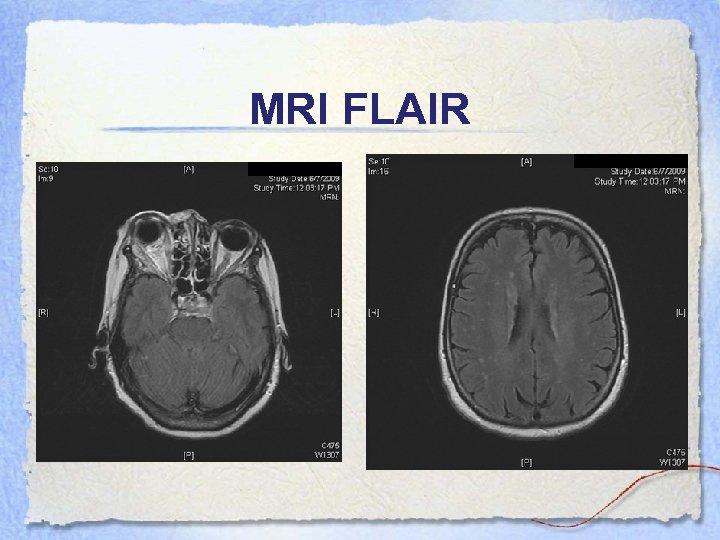 MRI FLAIR