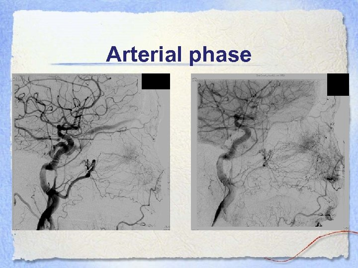 Arterial phase