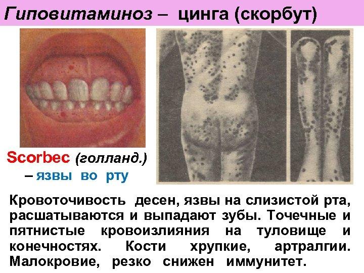 Гиповитаминоз – цинга (скорбут) Scorbec (голланд. ) – язвы во рту Кровоточивость десен, язвы