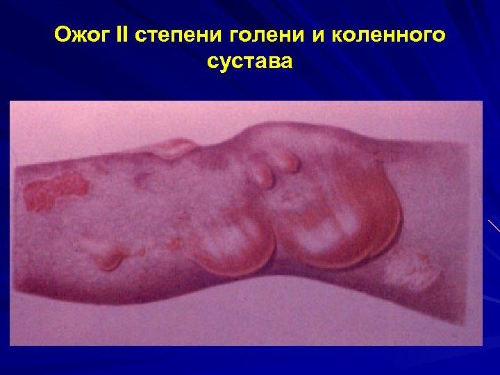Ожог II степени голени и коленного сустава