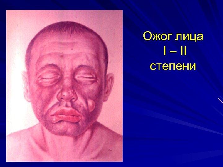 Ожог лица I – II степени