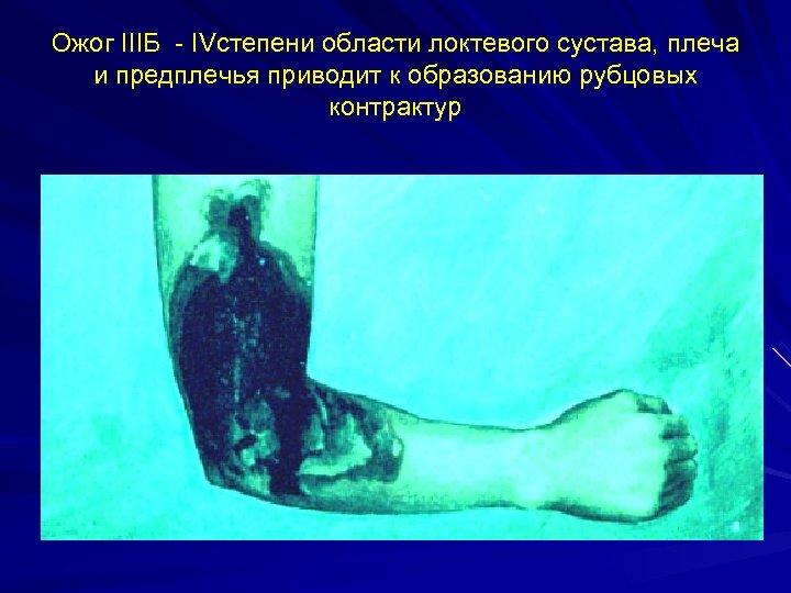 Ожог IIIБ - IVстепени области локтевого сустава, плеча и предплечья приводит к образованию рубцовых