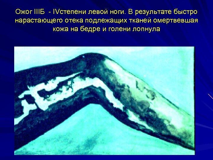 Ожог IIIБ - IVстепени левой ноги. В результате быстро нарастающего отека подлежащих тканей омертвевшая