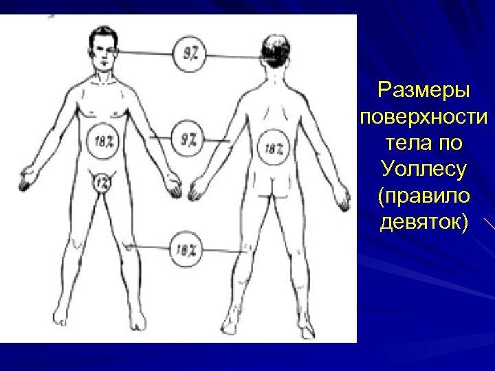 Размеры поверхности тела по Уоллесу (правило девяток)