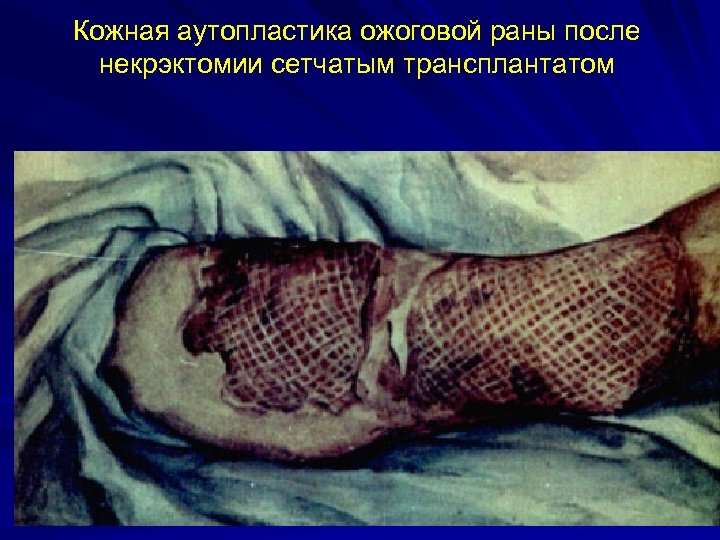 Кожная аутопластика ожоговой раны после некрэктомии сетчатым трансплантатом