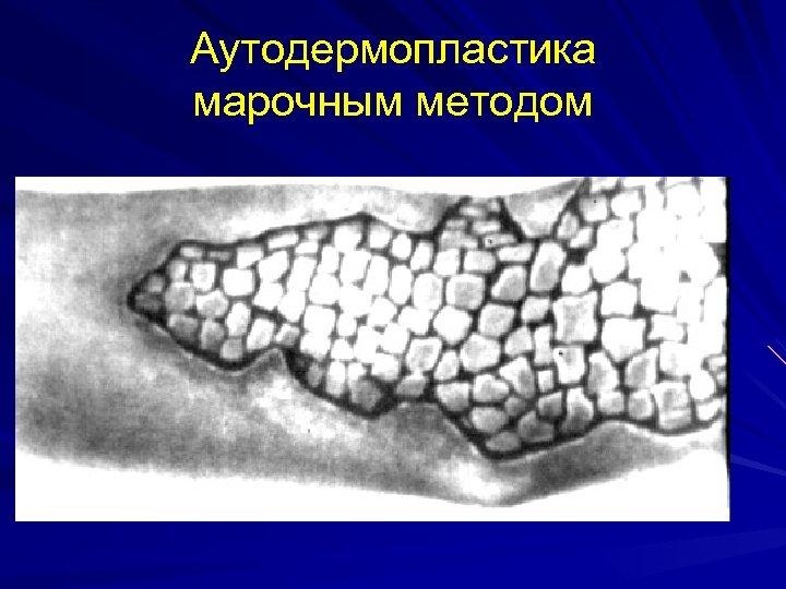 Аутодермопластика марочным методом