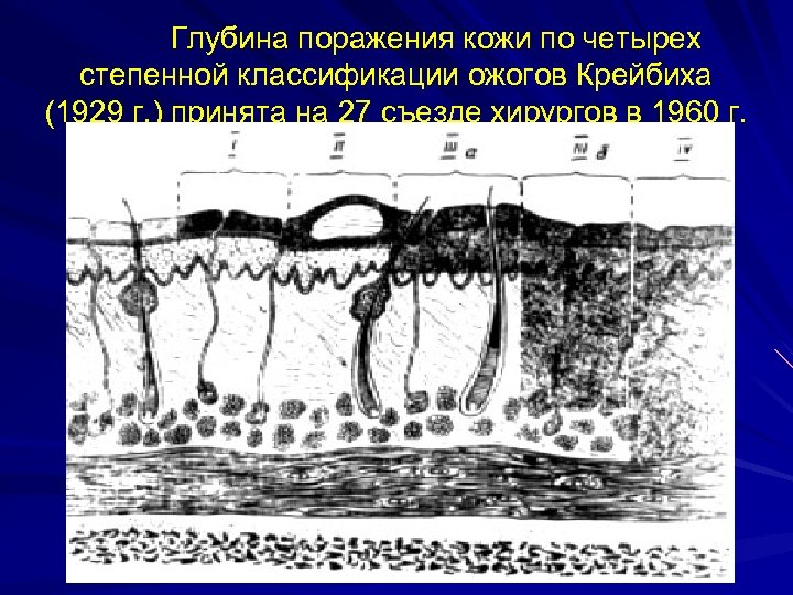 Глубина поражения кожи по четырех степенной классификации ожогов Крейбиха (1929 г. ) принята на