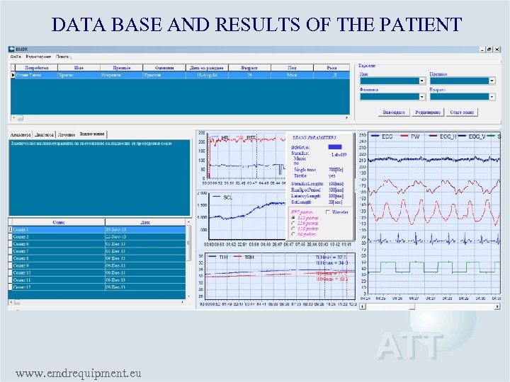 DATA BASE AND RESULTS OF THE PATIENT www. emdrequipment. eu