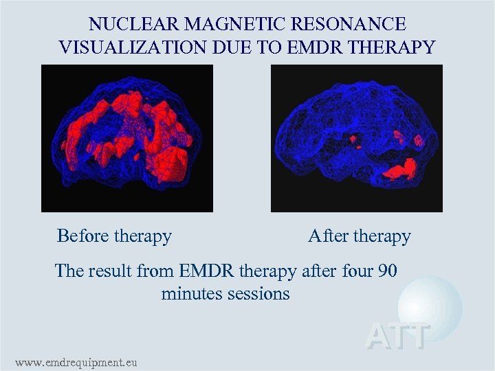 NUCLEAR MAGNETIC RESONANCE VISUALIZATION DUE TO EMDR THERAPY Before therapy After therapy The result