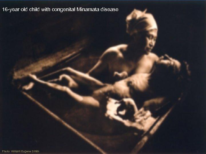 16 -year old child with congenital Minamata disease Photo: William Eugene Smith