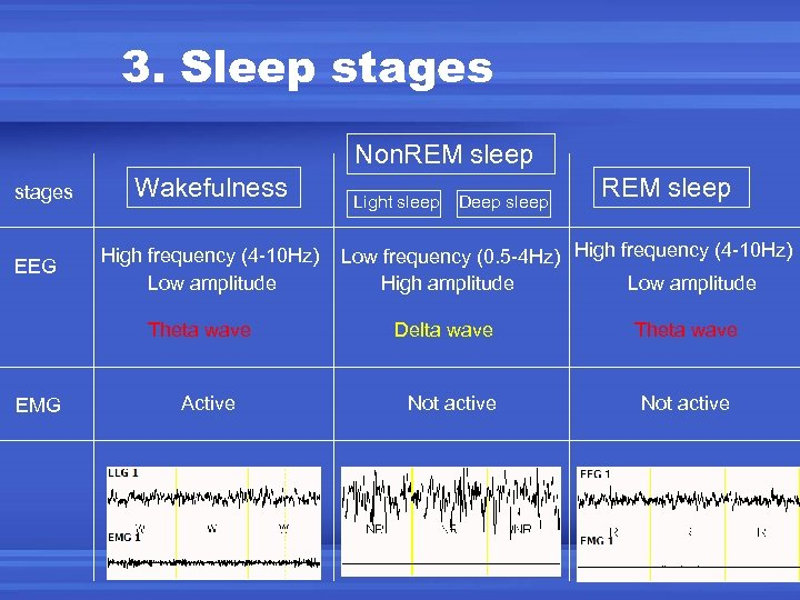 3. Sleep stages Non. REM sleep stages EEG Wakefulness High frequency (4 -10 Hz)