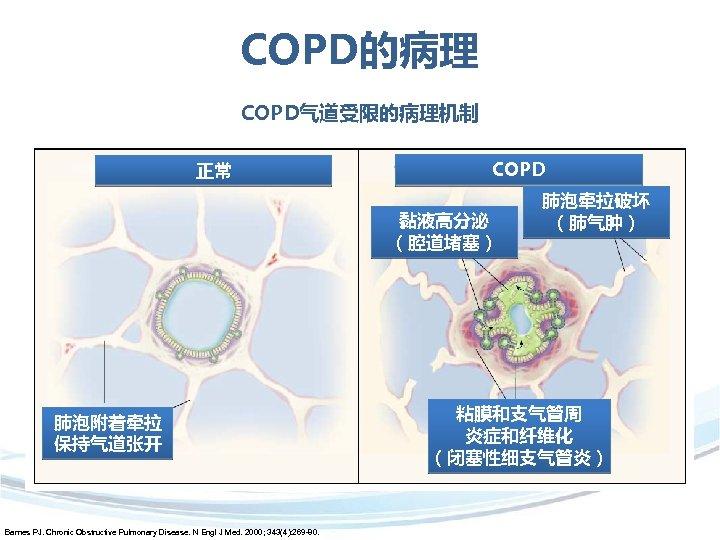 COPD的病理 COPD气道受限的病理机制 正常 COPD 黏液高分泌 (腔道堵塞) 肺泡附着牵拉 保持气道张开 Barnes PJ. Chronic Obstructive Pulmonary Disease.