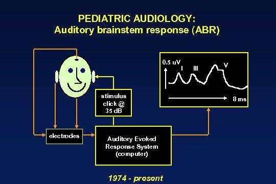 PEDIATRIC AUDIOLOGY: Auditory brainstem response (ABR) 0. 5 u. V stimulus click @ 35