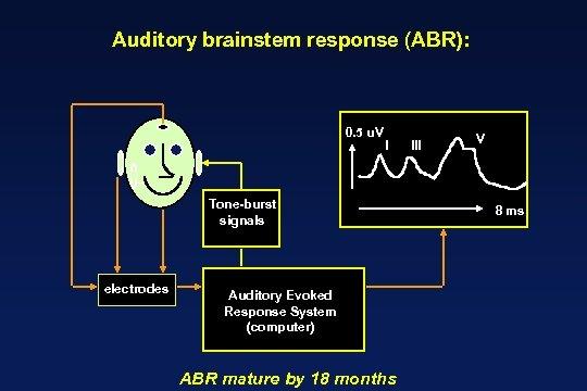 Auditory brainstem response (ABR): 0. 5 u. V I Tone-burst signals electrodes Auditory Evoked
