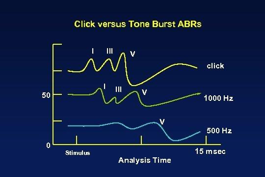 Click versus Tone Burst ABRs I III V click I 50 III V 1000