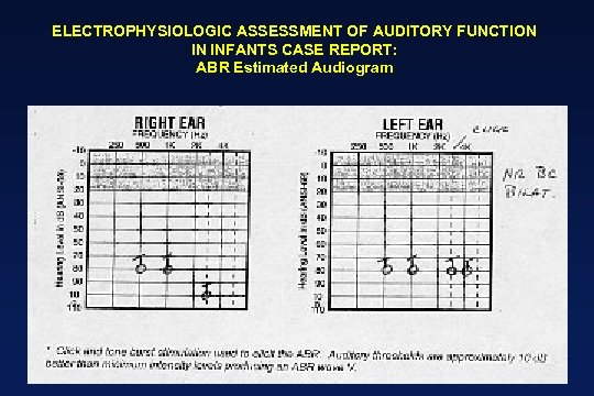 ELECTROPHYSIOLOGIC ASSESSMENT OF AUDITORY FUNCTION IN INFANTS CASE REPORT: ABR Estimated Audiogram