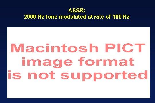 ASSR: 2000 Hz tone modulated at rate of 100 Hz