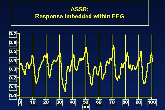 ASSR: Response imbedded within EEG 0. 7 0. 6 0. 5 0. 4 0.