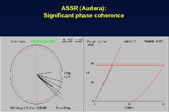 ASSR (Audera): Significant phase coherence