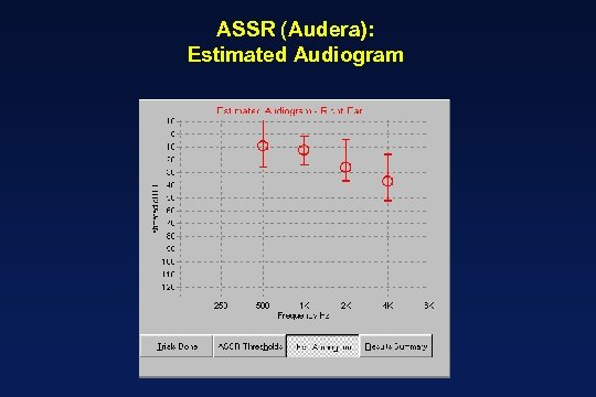 ASSR (Audera): Estimated Audiogram