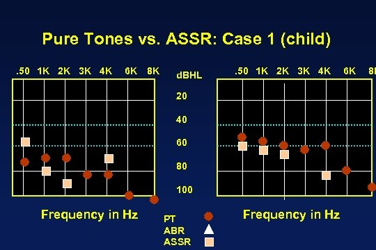 Pure Tones vs. ASSR: Case 1 (child). 50 1 K 2 K 3 K