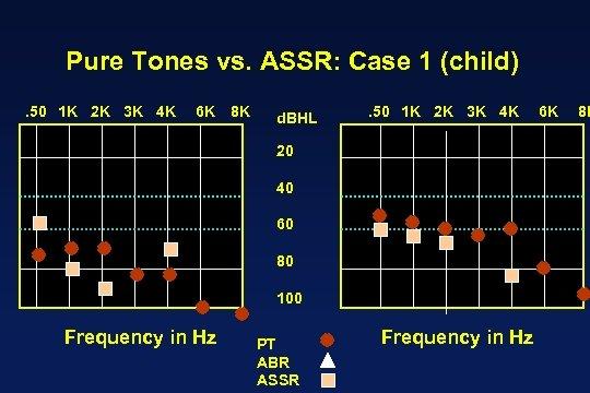 Pure Tones vs. ASSR: Case 1 (child). 50 1 K 2 K 3 K