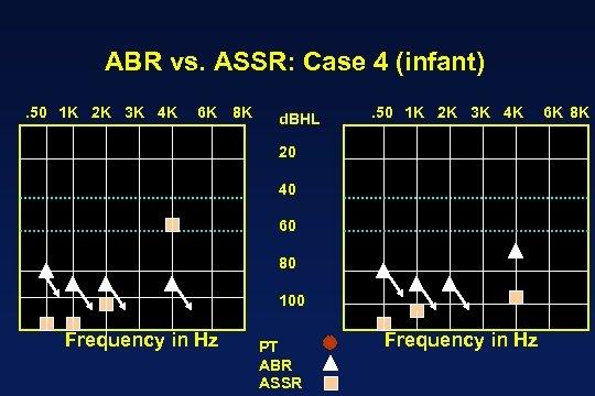 ABR vs. ASSR: Case 4 (infant). 50 1 K 2 K 3 K 4