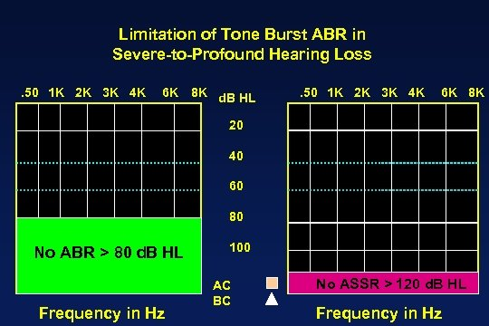 Limitation of Tone Burst ABR in Severe-to-Profound Hearing Loss. 50 1 K 2 K
