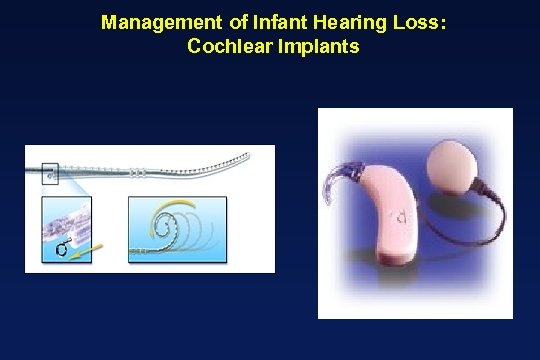Management of Infant Hearing Loss: Cochlear Implants