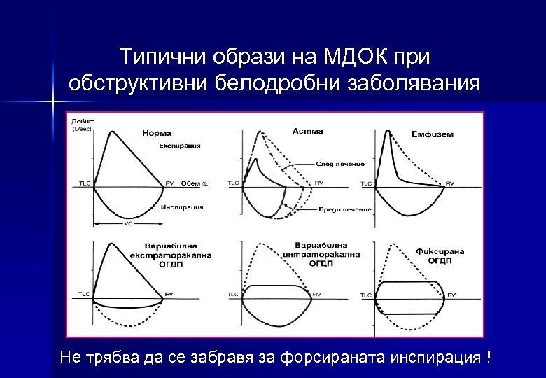 Типични образи на МДОК при обструктивни белодробни заболявания Не трябва да се забравя за