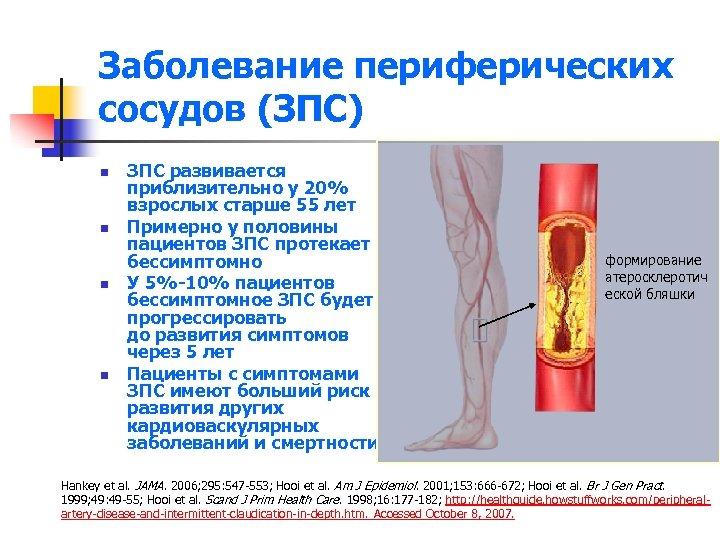 Заболевание периферических сосудов (ЗПС) n n ЗПС развивается приблизительно у 20% взрослых старше 55