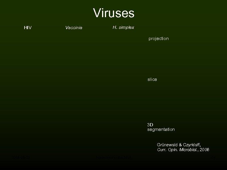 Viruses HIV Vaccinia H. simplex projection slice 3 D segmentation Grünewald & Czyrklaff, Curr.