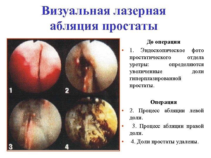 Визуальная лазерная абляция простаты До операции • 1. Эндоскопическое фото простатического отдела уретры: определяются