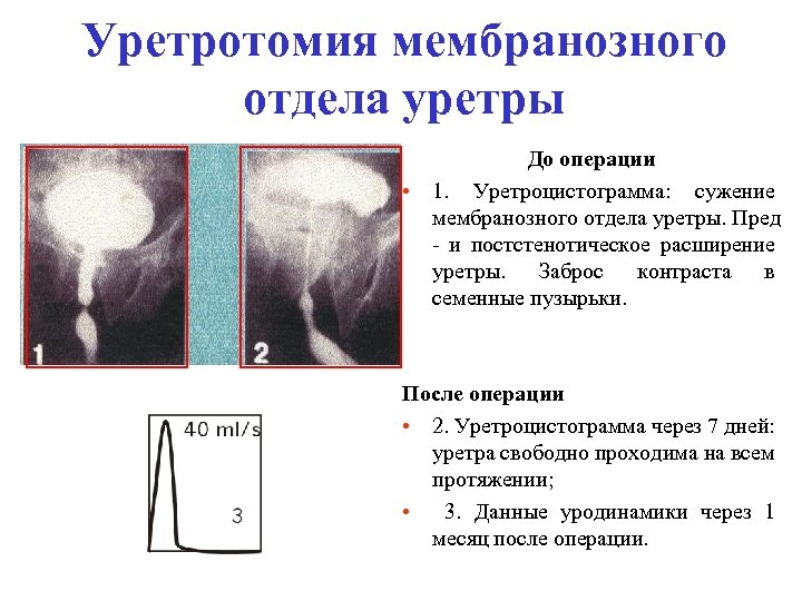 Уретротомия мембранозного отдела уретры До операции • 1. Уретроцистограмма: сужение мембранозного отдела уретры. Пред