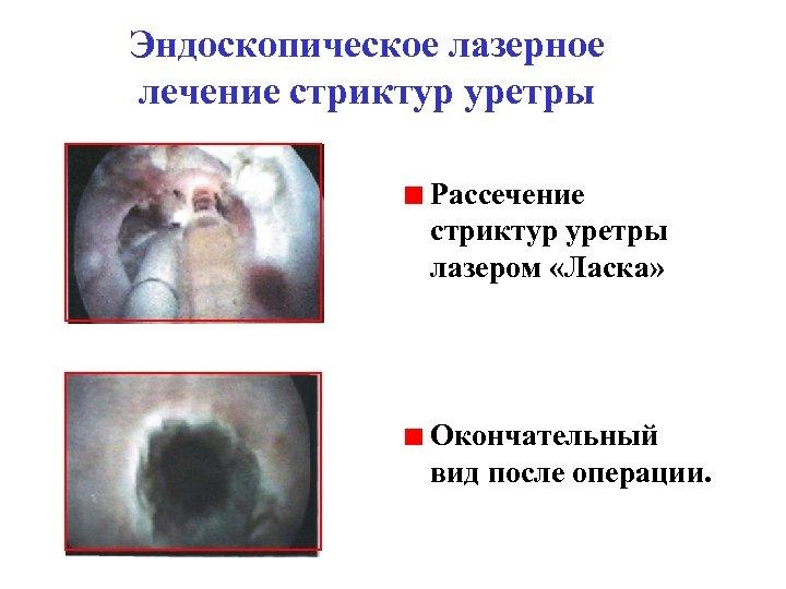 Эндоскопическое лазерное лечение стриктур уретры Рассечение стриктур уретры лазером «Ласка» Окончательный вид после операции.