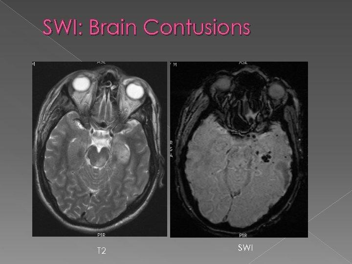 SWI: Brain Contusions T 2 SWI