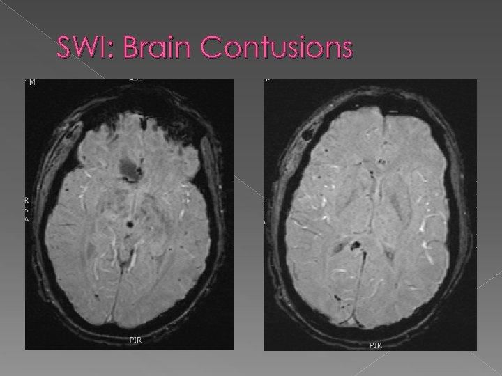 SWI: Brain Contusions