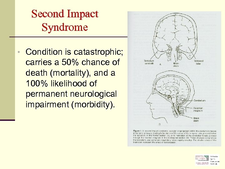 Second Impact Syndrome • Condition is catastrophic; carries a 50% chance of death (mortality),