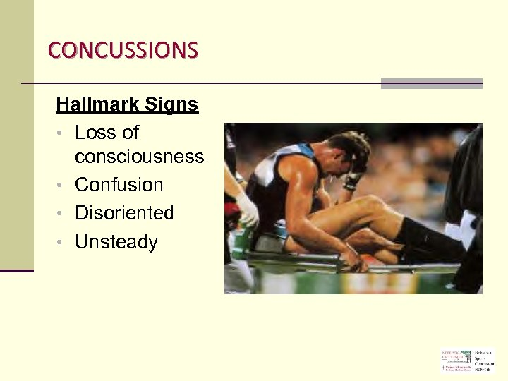 CONCUSSIONS Hallmark Signs • Loss of consciousness • Confusion • Disoriented • Unsteady