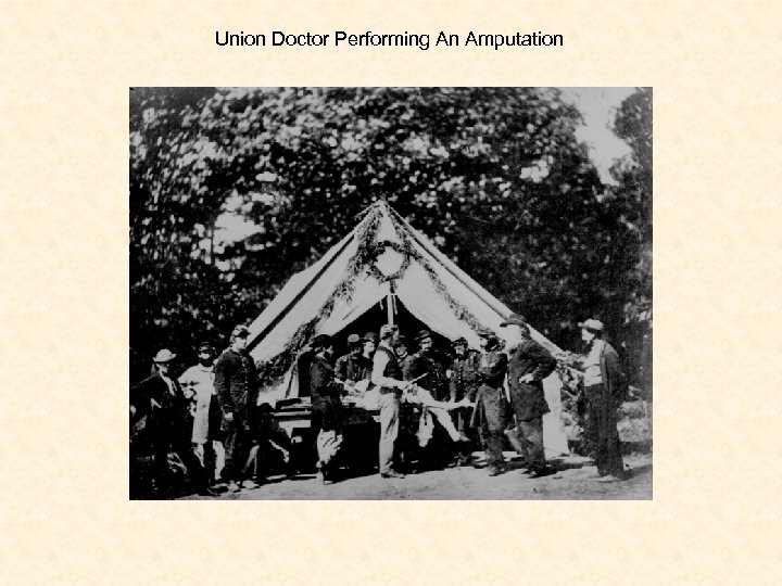 Union Doctor Performing An Amputation