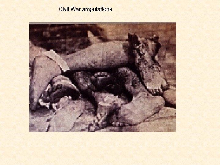 Civil War amputations