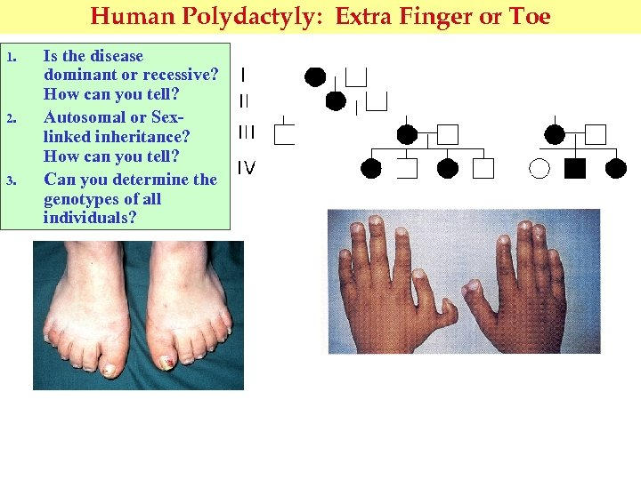 Human Polydactyly: Extra Finger or Toe 1. 2. 3. Is the disease dominant or