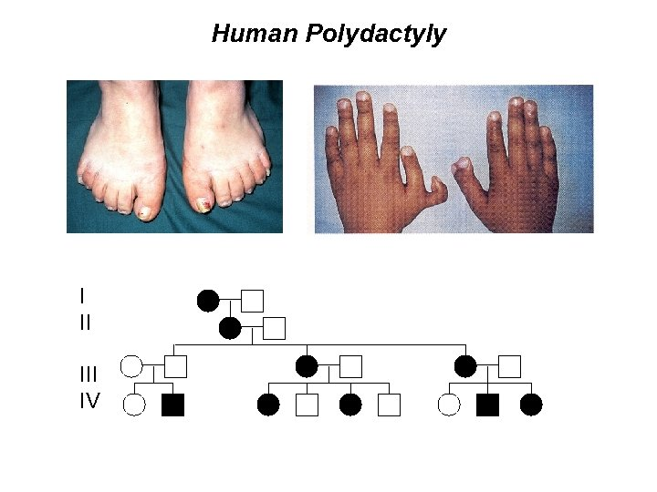 Human Polydactyly I II IV