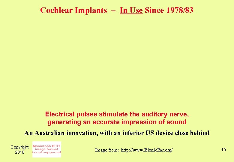 Cochlear Implants – In Use Since 1978/83 Electrical pulses stimulate the auditory nerve, generating