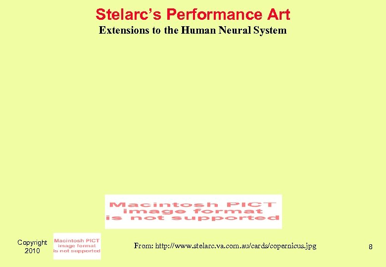 Stelarc's Performance Art Extensions to the Human Neural System Copyright 2010 From: http: //www.