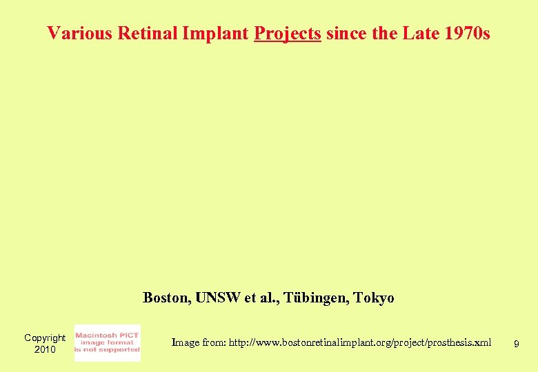 Various Retinal Implant Projects since the Late 1970 s Boston, UNSW et al. ,